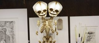 A two-headed skeleton